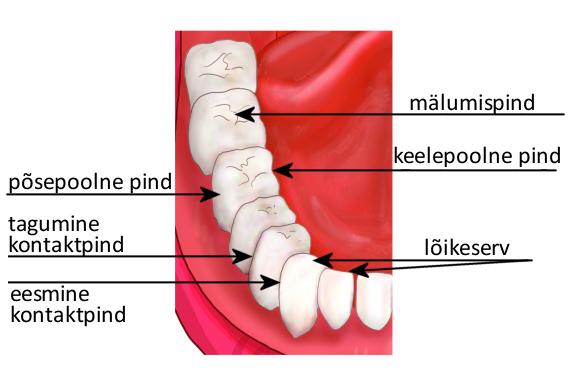 kaalulangus hammaste haiget 63 kg kaalulangus