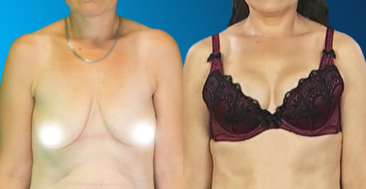 burn hd rasva poletid ulemine keha ohuke alumise keharasva