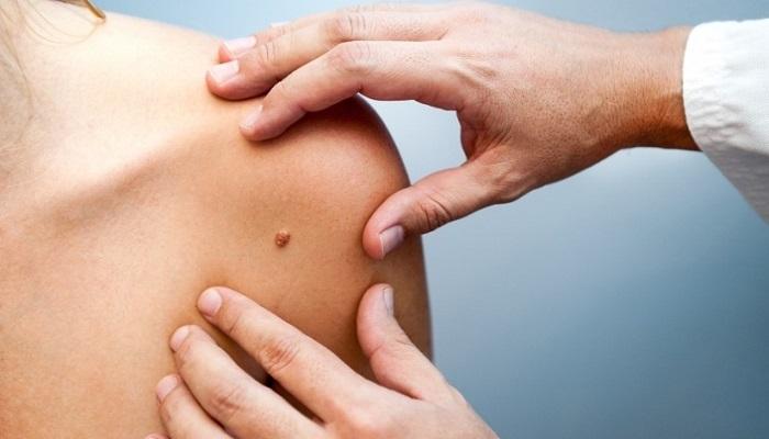 looduslikud rasva poletavad retseptid kaalulangus spaad usas